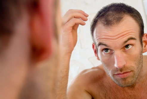 Options And Possible Solutions for Baldness
